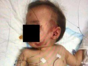 Neonato picchiato da un ragazzo di 20 anni e ridotto in fin di vita