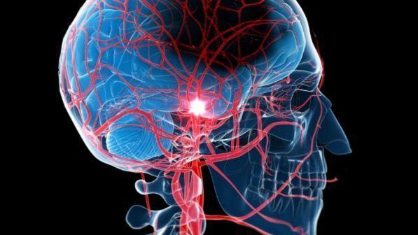 Studio italiano localizza la sede della schizofrenia nel cervello