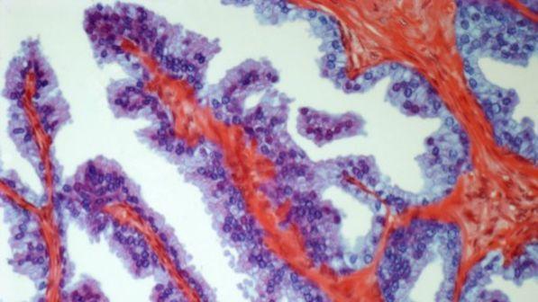 Dagli Usa nuovo test del sangue per tumore alla prostata: si evitano gli esami invasivi