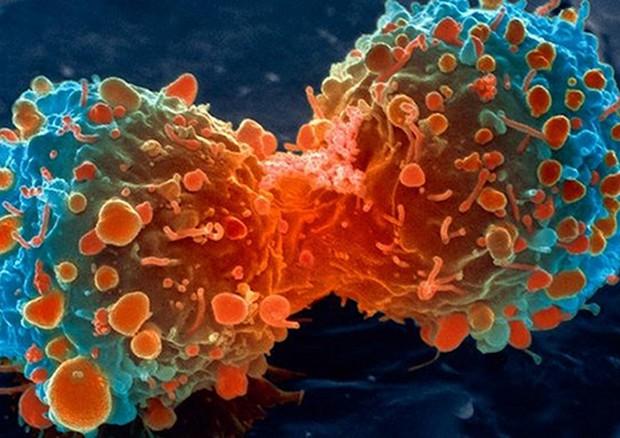 Tumori, trovato il codice di autodistruzione delle cellule