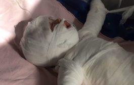 Bimba di 11 mesi cade nella pentola dell'acqua bollente mentre fa il bagnetto, gravissima in ospedale