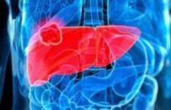 Troppo fumo e poco sport, in aumento i casi di cancro in Sicilia: sono oltre 27 mila